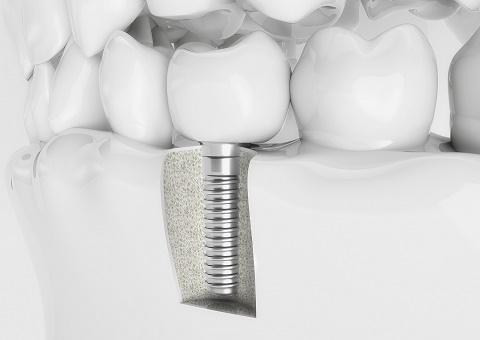 teeth, health,smile, dentist