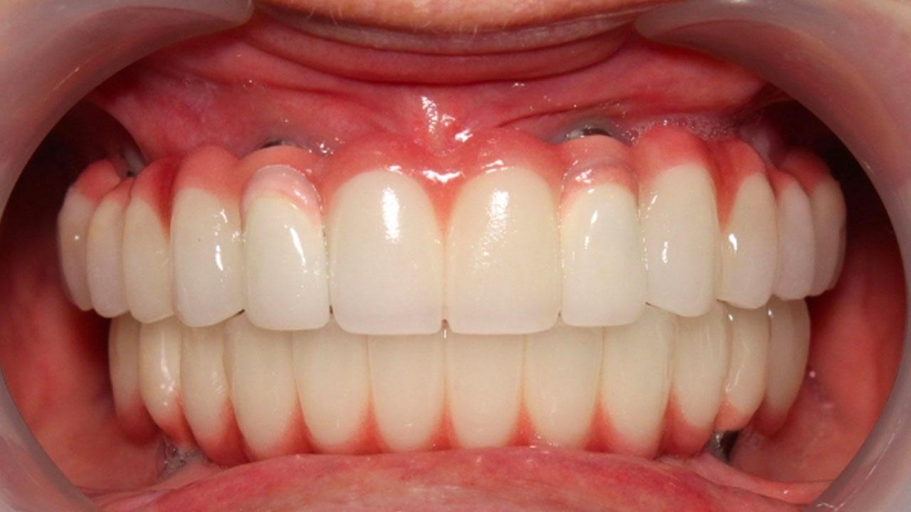 Dentist North Shields